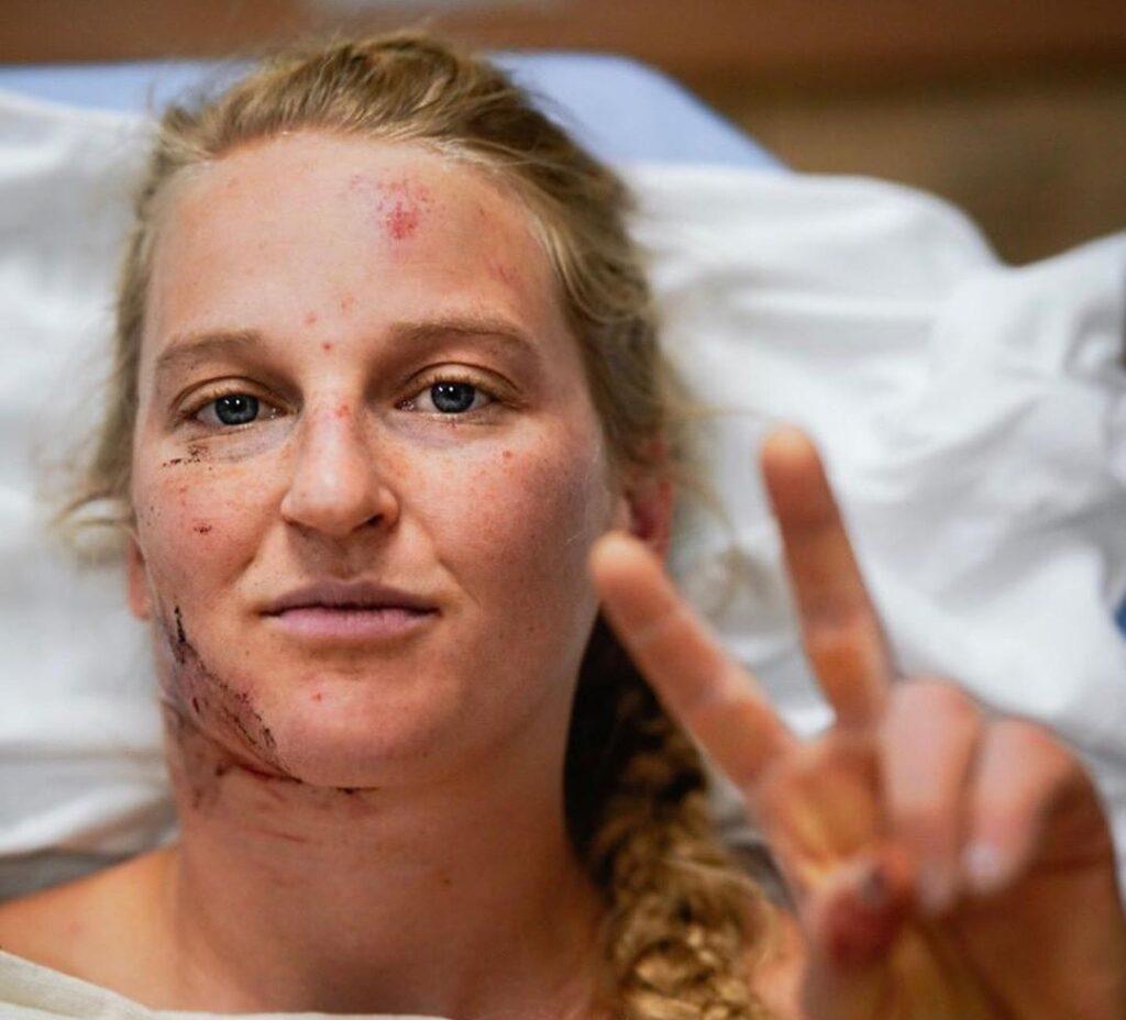Emily Harrington en el hospital tras sufrir un accidente en El Capitan