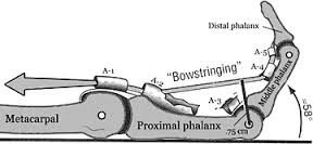 ejemplo de rotura total de polea A2
