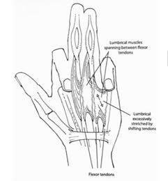 Ilustración de la acción/flexión en lumbricales